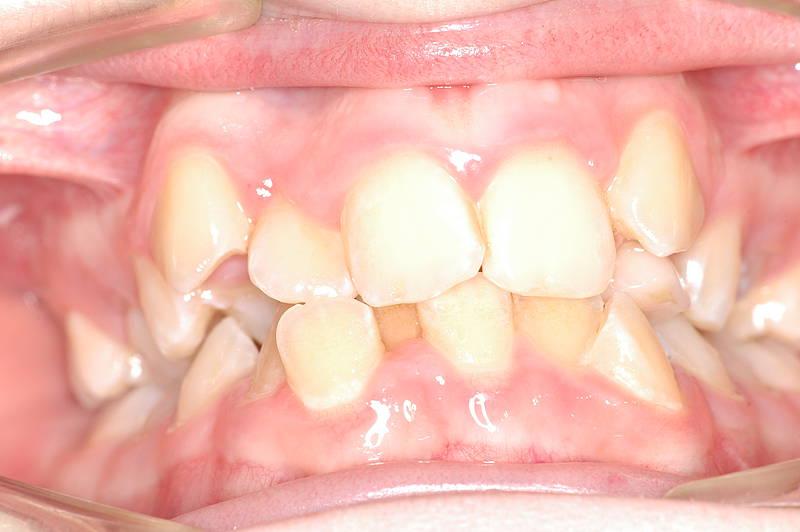 Zähne krumme krumme Zähne